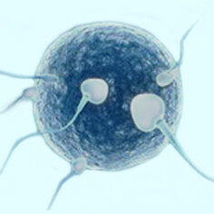 IVF/ Invitro Fertilization